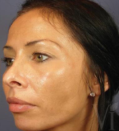 facial in laser montreal