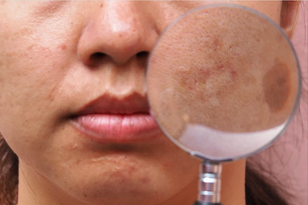 PIH (Post inflammatory hyperpigmentation)
