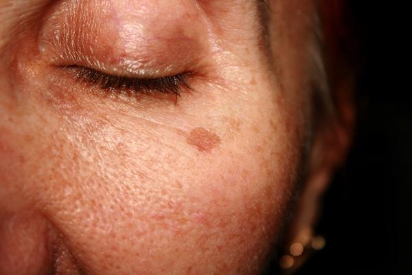 Sun & Age spots • Dark & Brown spots on skin